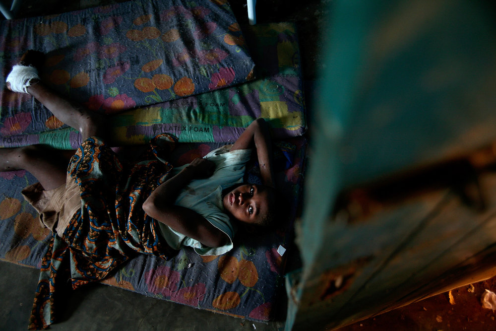 Erahmah, a young girl with Guinea worm disease, lies on a mat on the floor of a Guinea Worm Case Containment Center in Wantugu, Ghana on Dec. 27, 2006. She complained that the Guinea worm in her foot was so painful that she could not walk, even to get food for herself.