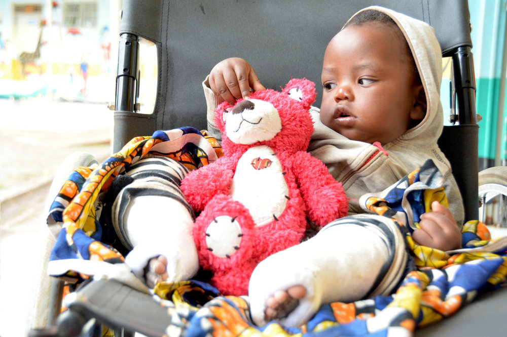 8-month-old Baraka was born with bilateral clubfeet. He is undergoing serial casting to correct the deformity.