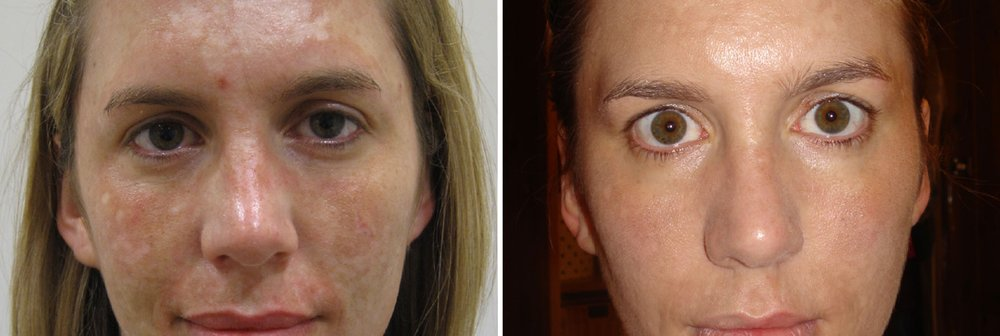 edermastamp-before-after-pigmentation.jpg