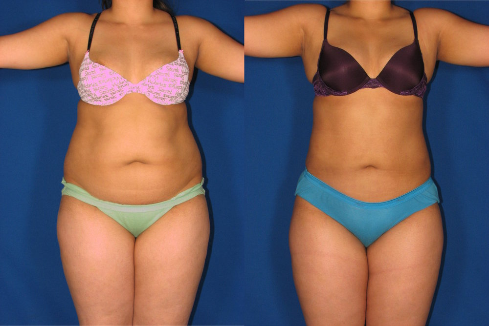 Lipo Before After 3.jpg