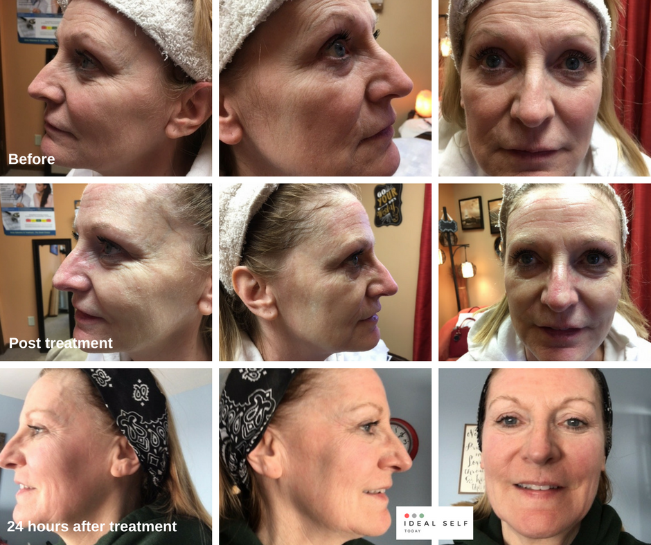 microneedling before after 24 hours (1).png