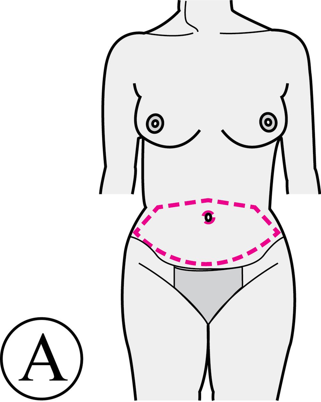 Abdominoplastie Avant