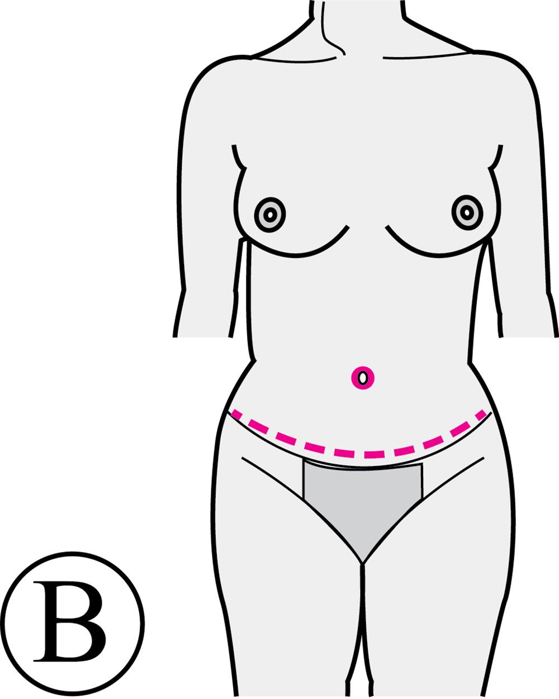 Abdominoplastie Après