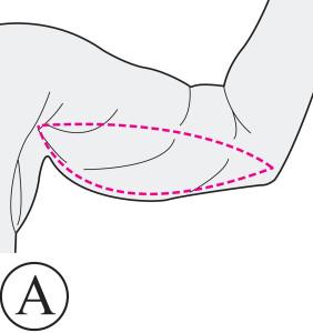 Brachioplastie Avant