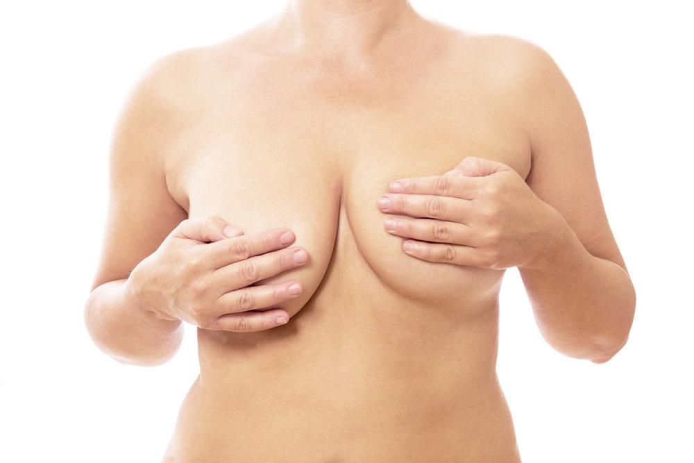 Asymétrie mammaire_3.jpg
