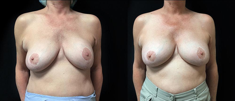 Cas 4 - Prothèses rupturées et coques fibreuses