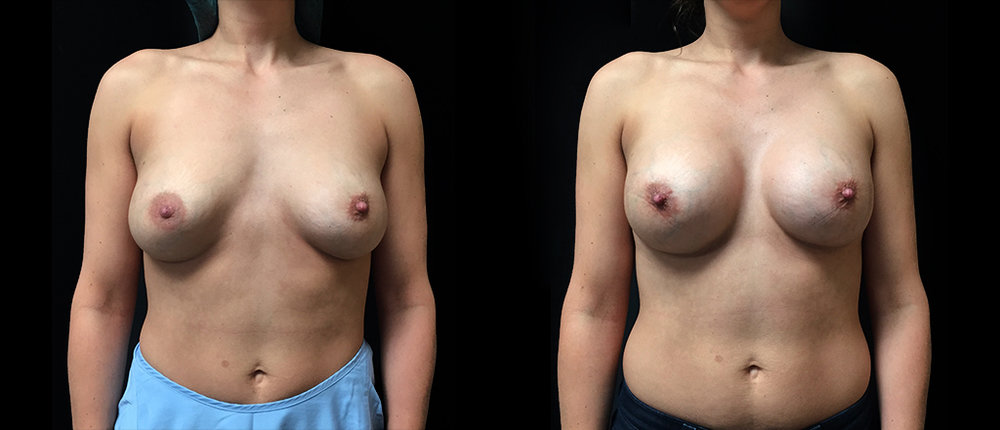 Cas 5 - Malposition implants