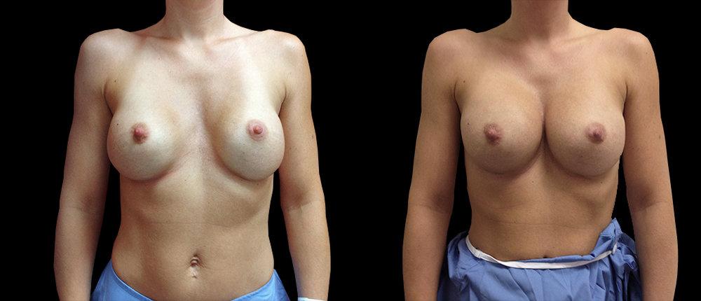 Cas 6 - Malposition implants