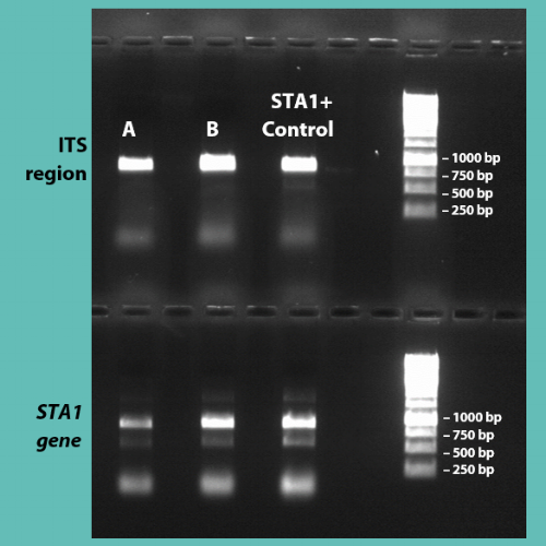 An agarose DNA gel of PCR products. The top gel shows the presence of the ITS band of  Saccharomyces cerevisiae  (top), and the bottom, the  STA1  gene.  When the presence of both genes is detected for a sample (e.g. A or B), this indicates that it is   Saccharomyces cerevisiae  var.  diastaticus !   We always include a known  diastaticus  strain as a positive control (STA1+), just in case!