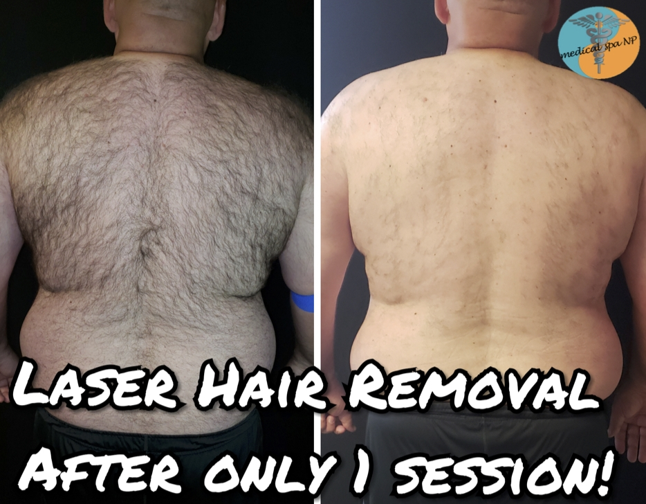 Life-Changing! - Before any treatments and 6 weeks later after only 1 treatment! He is not shaved in the second picture! Come see why our laser hair removal machine is superior! This guy has been struggling with his hair for so long, that he has never been without a collared shirt, EVER.... Until now! And, he still has 5 treatments left!
