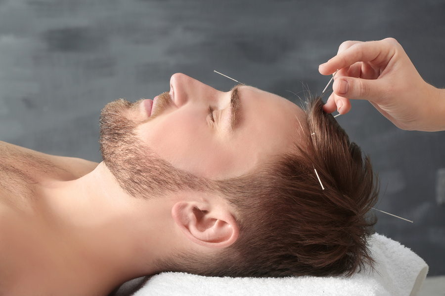 bigstock-Young-man-getting-acupuncture--181931818.jpg