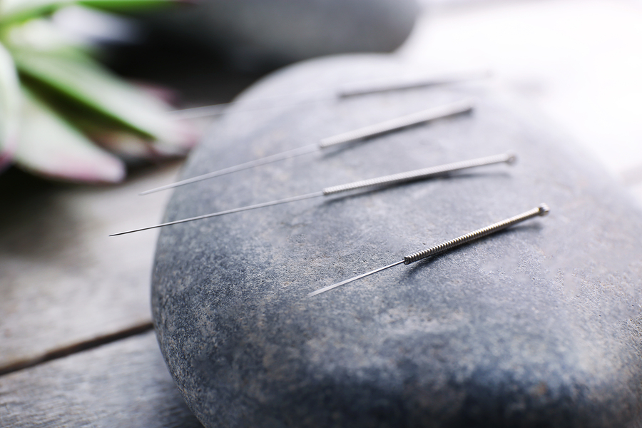 bigstock-Needle-for-acupuncture-on-spa--93539120.jpg