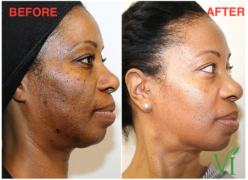 pigmentation - 3 VI Precision Plus Peels over a 3 month period.