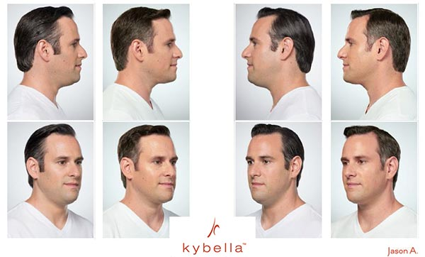 """A New """"Go -To"""" Chin Contouring for Women andMen - Kybella's ability to contour a defined chin for women and men is a welcome relief to many. Double chins don't just bother people who have excess weight; genes and aging can plant fat under the chin even when the rest of your body is at an ideal BMI.Women go for Kybella because it helps define the contours and keeps you looking more youthful. (And admittedly, a double chin doesdetract from other features you might prefer to accentuate.)Men opt for Kybella when they are wanting a stronger and more masculine jawline – seen as a real plus in the business world."""