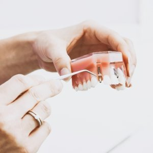 Implant Prosthesis