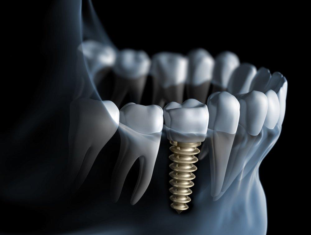 dental-implants-washington-dc