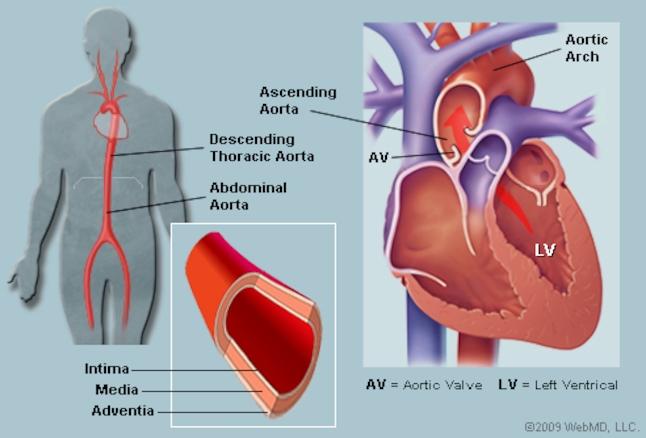 aorta.jpg