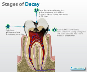 Stages-of-tooth-decay