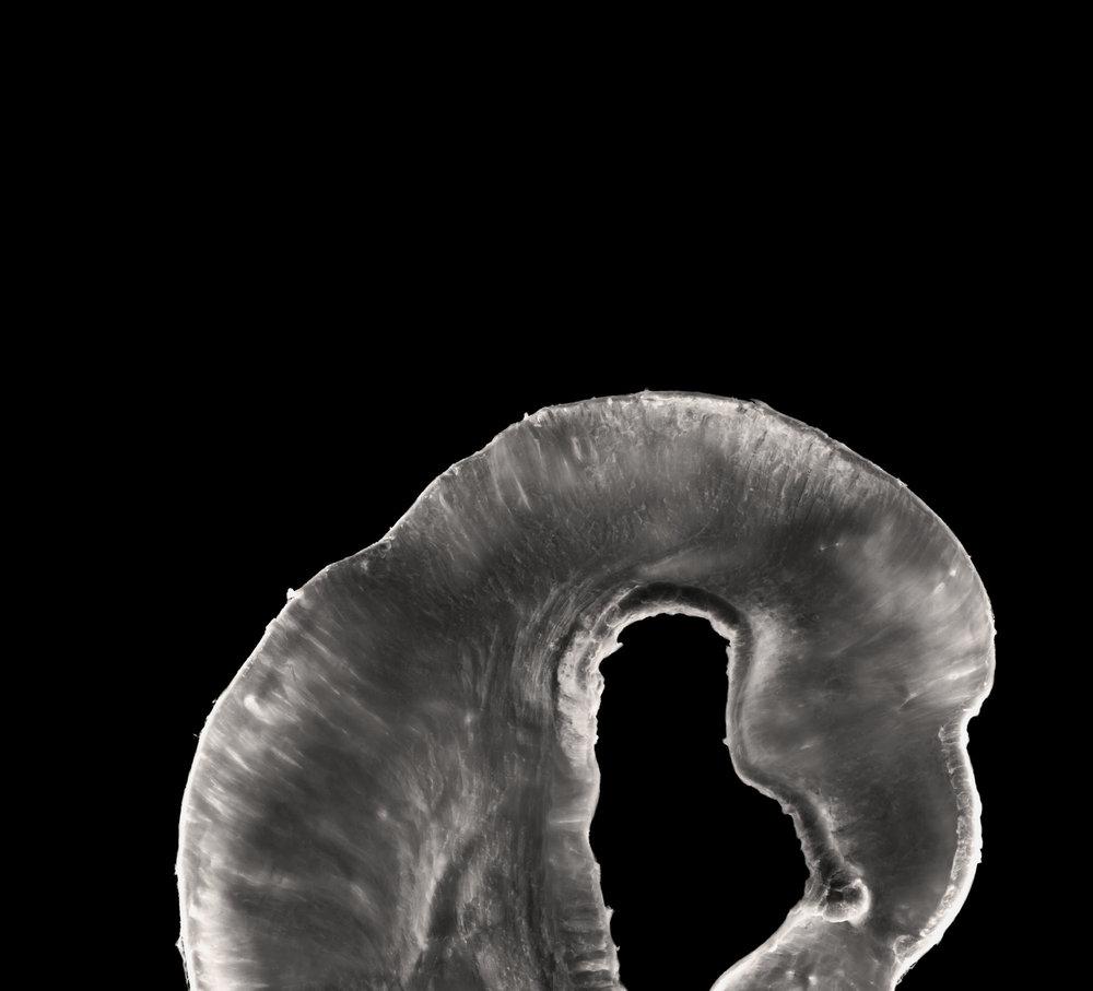 陳的拍攝胃的標本時,他思前想後,說胃的形態有點像一隻蝦。   胃及幽門 Stomach and pylorus