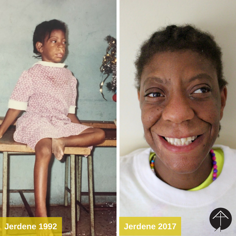 Jerdene 1992  2017 Before  After.png