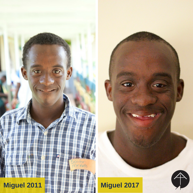 Miguel 2011  2017 Before  After.png