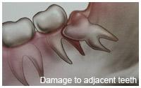 damageteeth.jpg