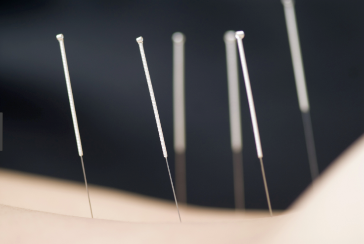 Acupuncture / Massage Therapy -
