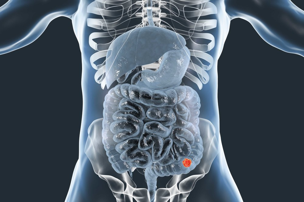 AdobeStock_colon cancer 2 human reduced.jpg
