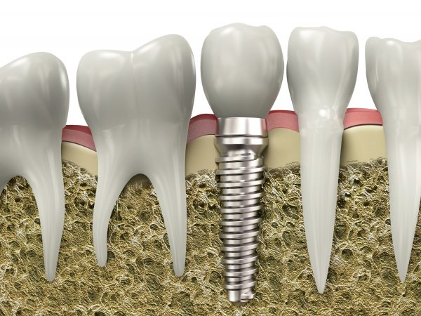 dental-implants2.jpg