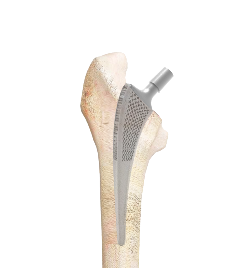implant-bone.png