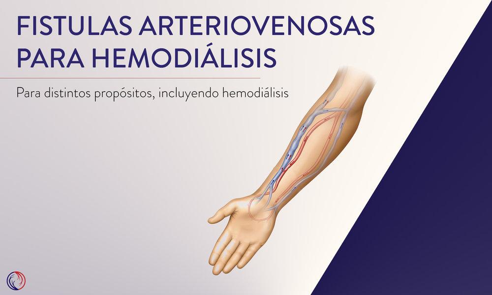 Fistulas arteriovenosas para hemodiálisis