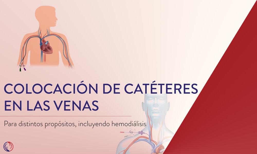 Colocación de catéteres en las venas
