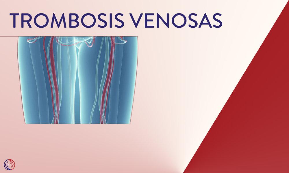 Trombosis venosas
