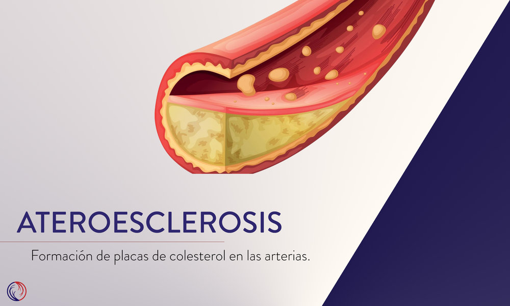 Ateroesclerosis