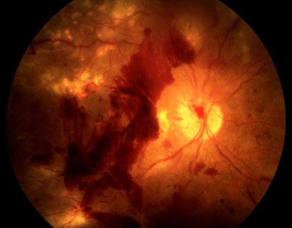 diabetic-retinopathy_420.jpg