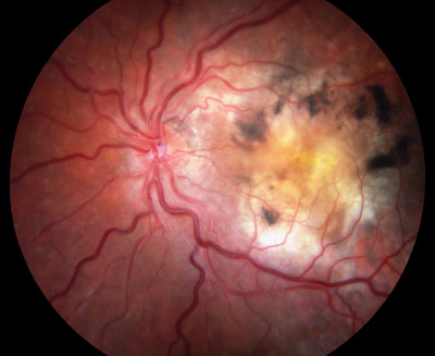 macular-degeneration-wet_400.jpg