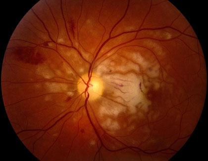 ocular-trauma_420.jpg