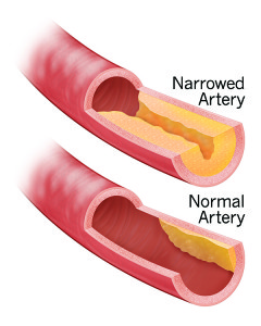 Narrowed-Artery-240x300.jpg