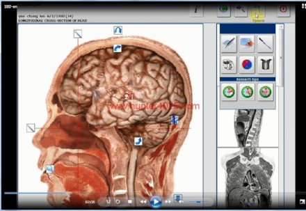 2015 NLS - NLS means nonlinear scan. By reading the brain waves, the inbalances of the human body can be detected and balanced using meta therapy and bioresonance. The system is 90 to 95 percent accurate and non invasive...