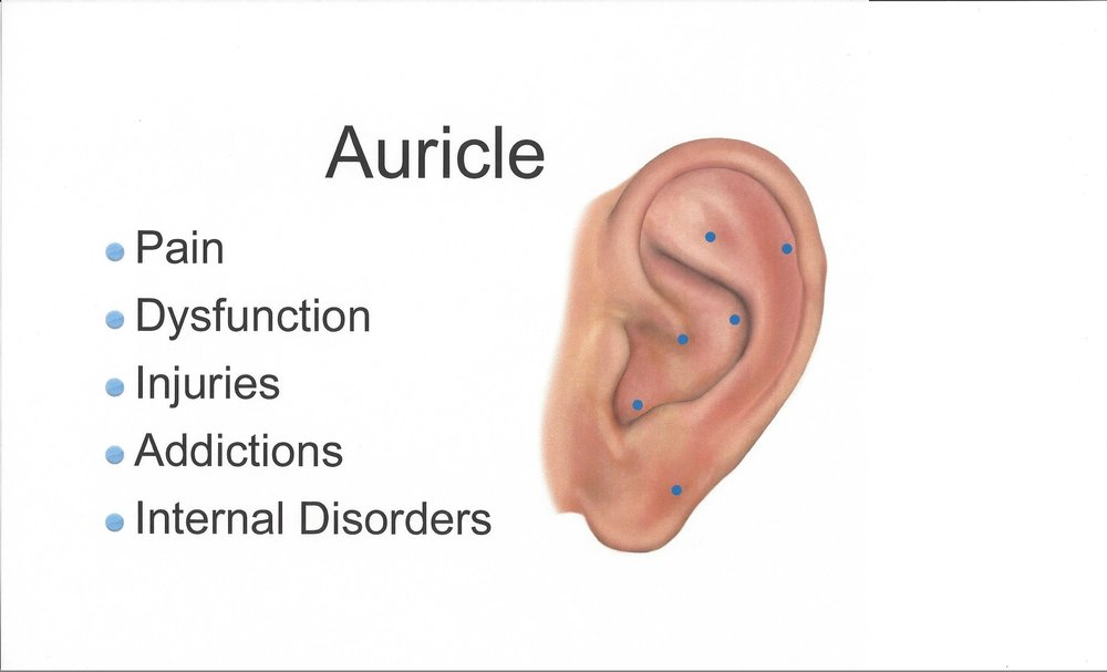 Auricular website 1-22 new website.jpg