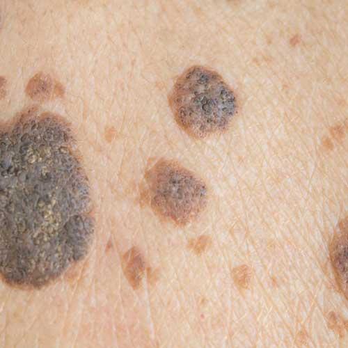 Seborrhoeic KeratosIs - Wart & Benign Skin Lesion Removal