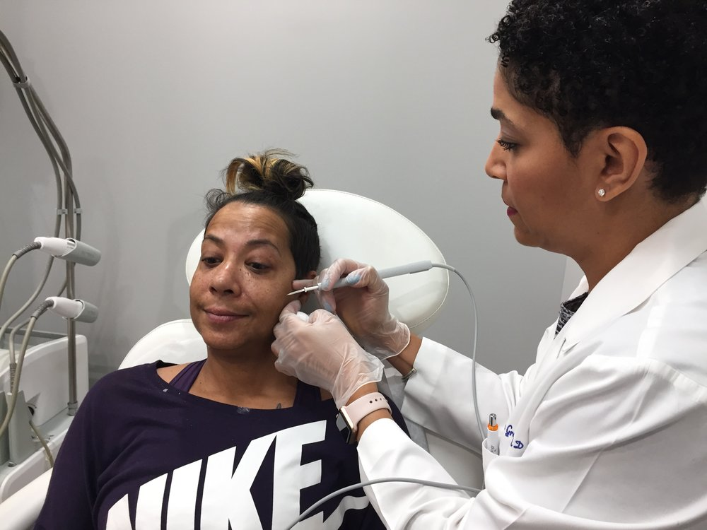 Image 2: The mole removal process is simple, she uses a laser pin to begin zapping the small moles on my face. The pain was minimum and Dr. Hicks-Graham is amazing and fast.
