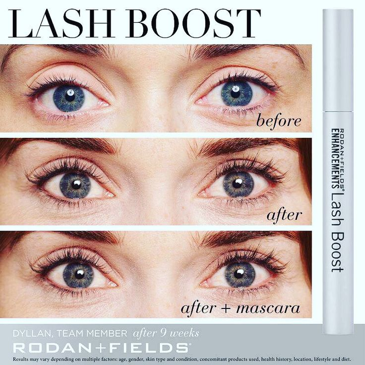 Click the Image and purchase the Lash Boost Today. I promise youll love it!