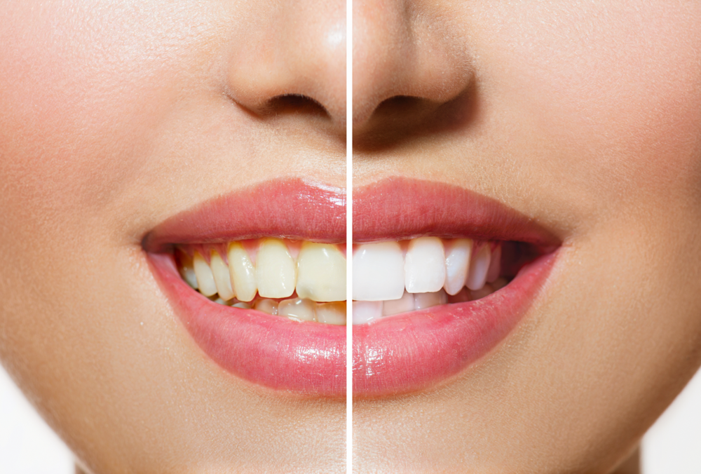 bigstock-Woman-Teeth-Before-and-after-W-55669106-sm.png