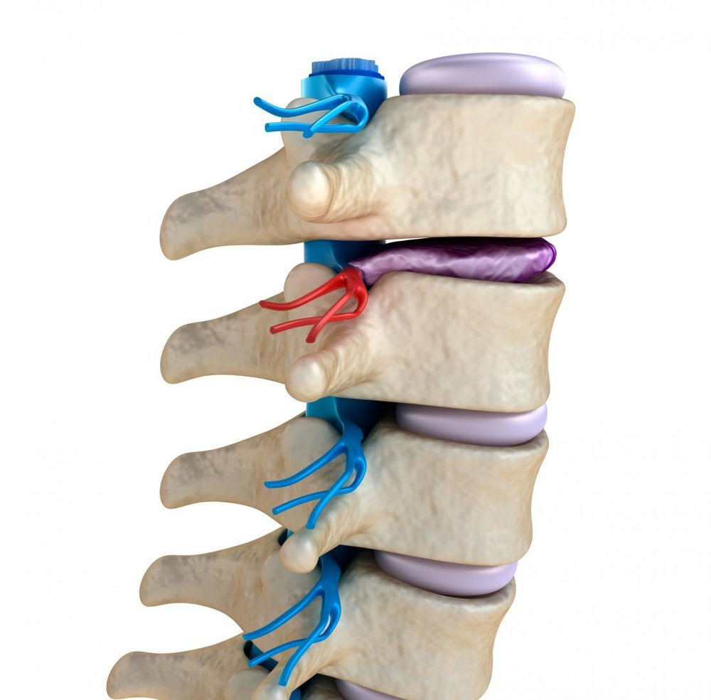 degenerative-disc-disease-herniated.jpg
