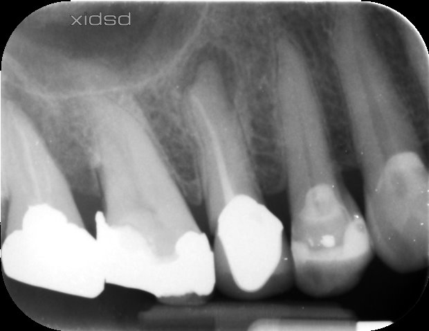 Root canal retreatment of a premolar with periapical