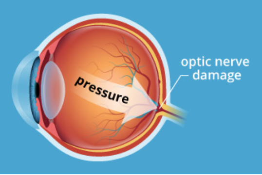 High pressure in the eye is the most common finding and can be lowered by treatment, including eye drops, laser or surgery.