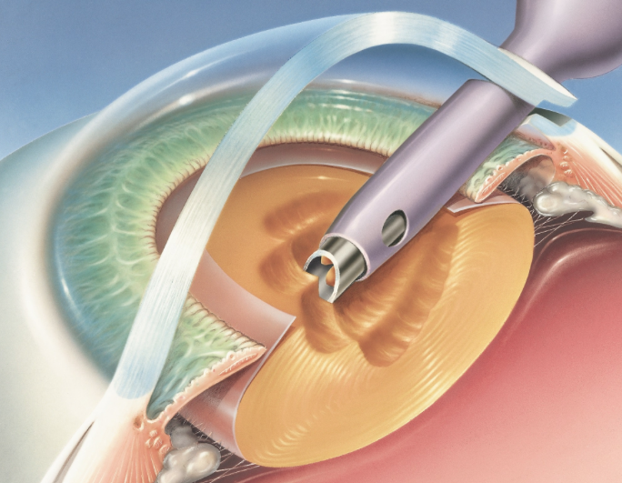 This illustration shows a 'phacoemulsification' probe removing the lens from an eye through a clear corneal incision.
