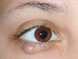 A lower eyelid chalazion (meibomian cyst) - can be treated as a minor local anaesthetic procedure.