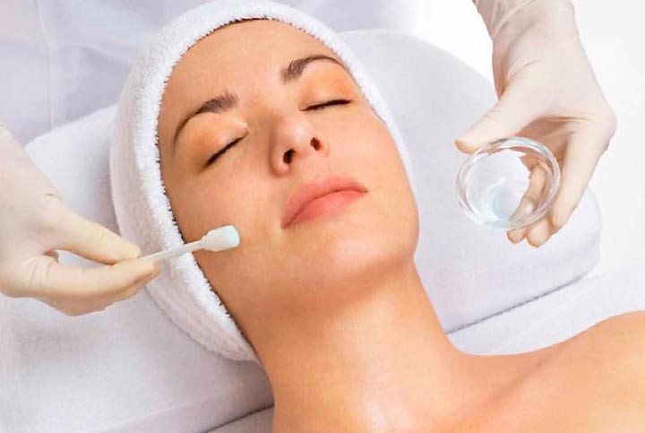 Chemical Peel -